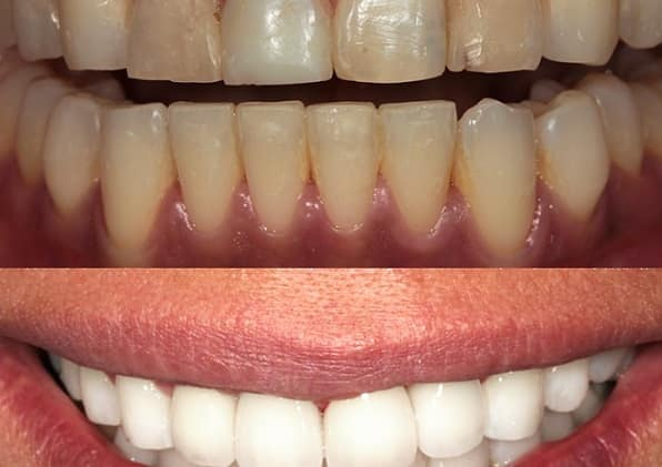 Change tooth colour