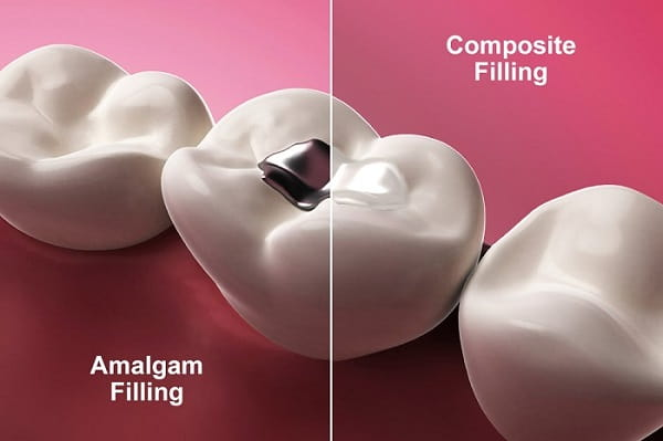 Factors to Consider When Choosing Which Material to Use for Dental Fillings