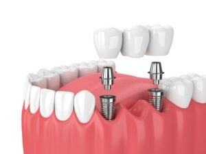 Fixed Partial Dentures (Implant-Supported Bridge