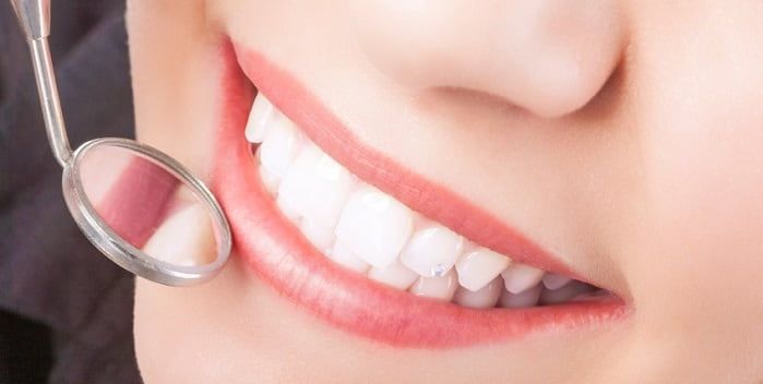 How Care for porcelain cosmetic Veneers