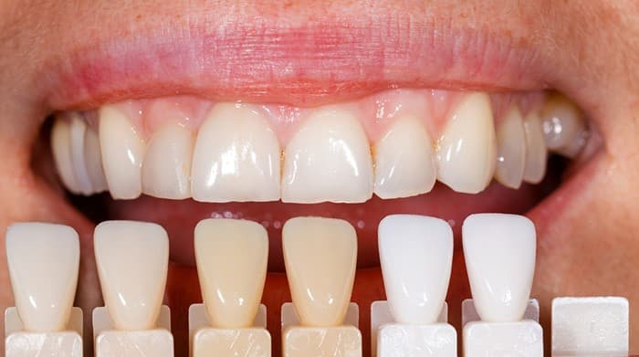 How do I get my new veneers to match my other teeth