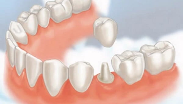 Reasons & Uses For Dental Crowns