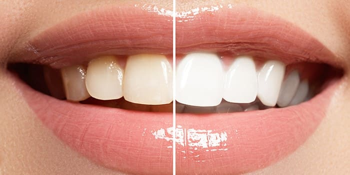 What can I expect after Professional Teeth Whitening