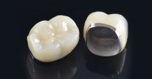 What to Expect with Dental Crowns in Aliso Viejo CA