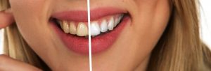 What to Expect with Teeth Whitening in Aliso Viejo CA