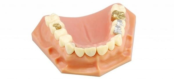 Why Dental Fillings Are Important